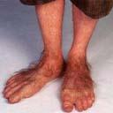 fungus feet